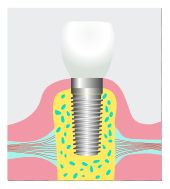 dental implant Newport Beach