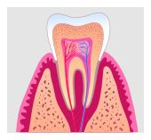 root canal treatment in Newport Beach
